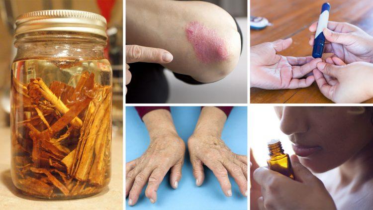 Óleo de canela: aprenda uma receita para ajudar a tratar dores nas articulações